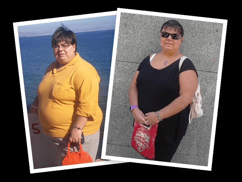 Pierde peso y reafirma tu piel con nuestro método