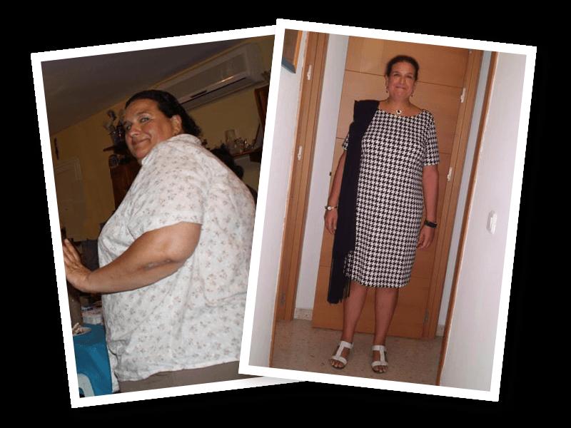 43 kilos totalmente reafirmada y sin estrías